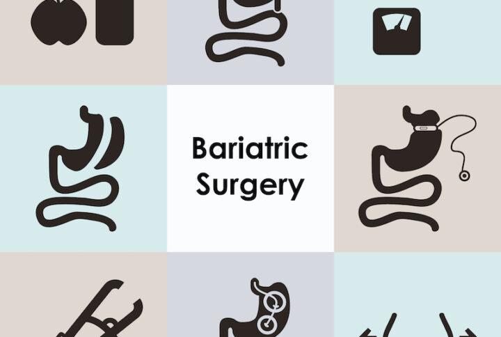 Best Bariatric Surgeon in Virginia