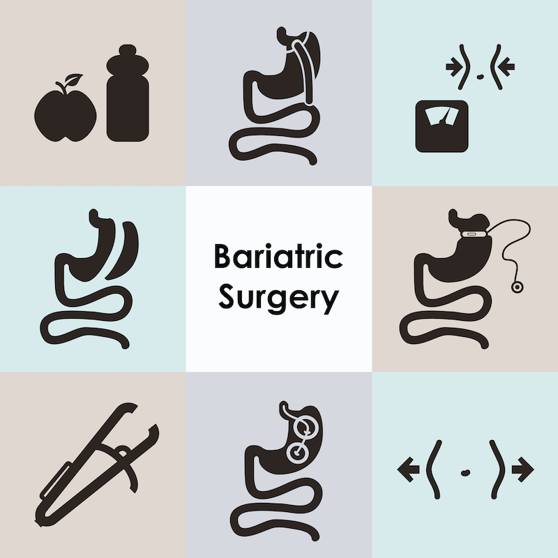 Best Bariatric Surgeon Virginia